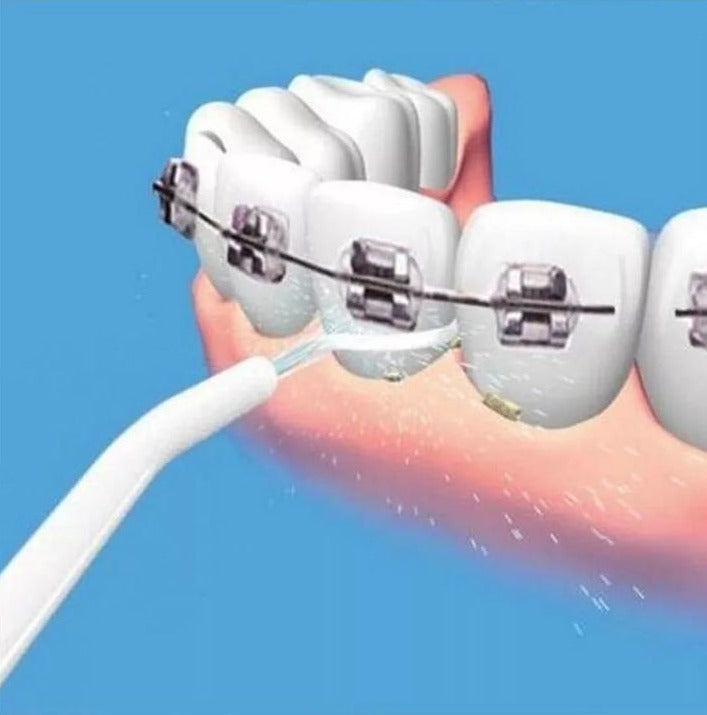 BrilliantSmile ™ - Ultrasonic Tooth Cleaner