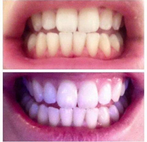 Non Perioxide Teeth Whitening