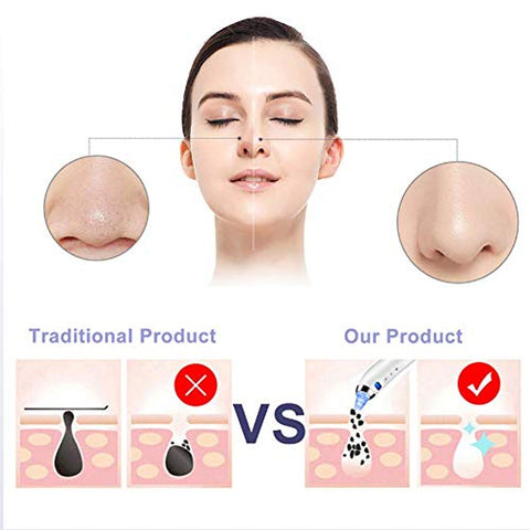 Blackhead Remover Facial Pore Cleanser Suction Vacuum Electric Rechargeable Facial Pore Cleanser Acne Extractor Whitehead Removal Tool Facial Skin Care Pore Clean for Women and Men