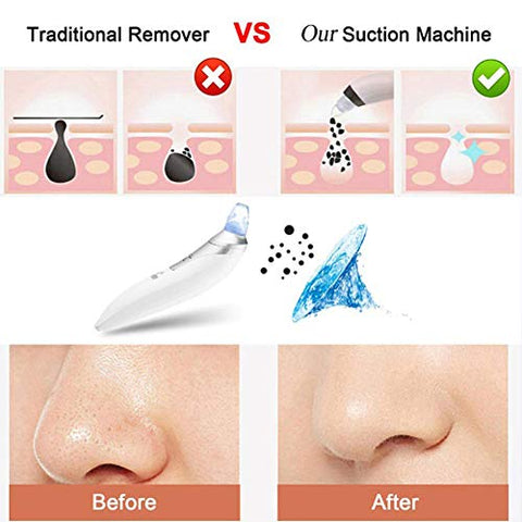 Electric Blackhead Remover - Rechargeable Facial Pore Cleanser Vacuum Suction Machine Acne Extractor Whitehead Removal Tool, White (Unisex Available)