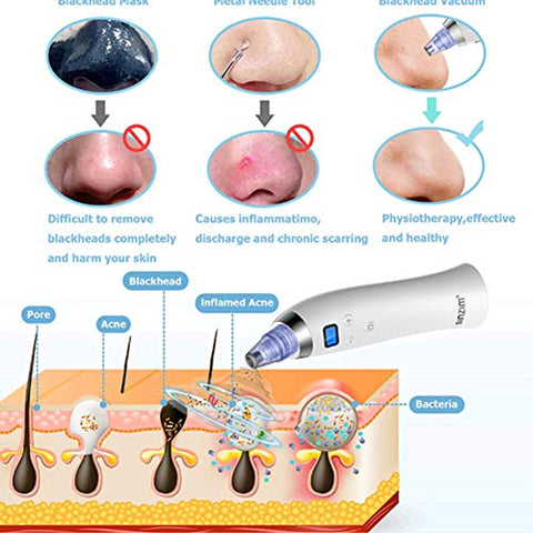 Blackhead Remover, Vacuum Blackhead Suction USB Rechargeable Extractor Tool for Acne and Facial Pore Cleansing