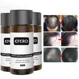Fast Hair Growth Oil - avdaco