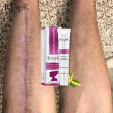 Acne Scar and Stretch Marks Remover Cream - avdaco