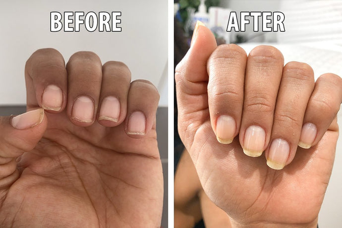 6 Tips for Naturally and Healthly Beautiful Nails