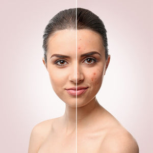 What key ingredient are you not hearing about that can treat your acne?