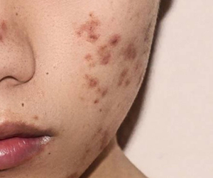 Is your acne causing stubborn dark spots?