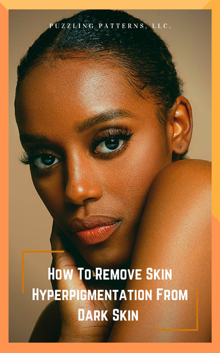 How To Remove Skin Hyperpigmentation From Dark Skin