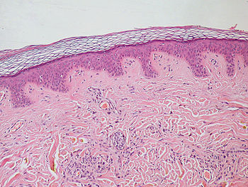 the structure of rete ridges in our skin