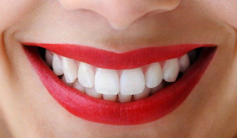 women smiling after using teeth whitening strips