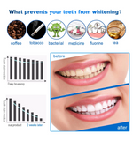 how teeth whitening strips can help