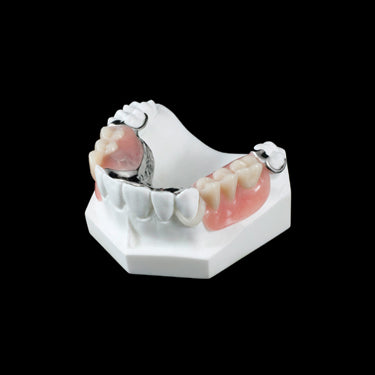 PB-3 Partial Framework - Avtec Dental