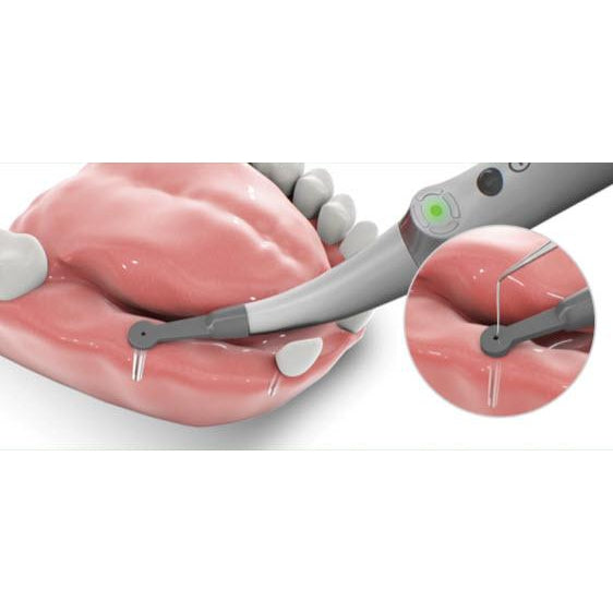 Spotter – Smart Implant Detector - Avtec Dental
