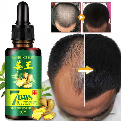 Hair Regrow Oil | 7 Day Hair Regrowth Ginger Serum