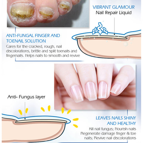 Fingernail fungus - Fungal Nail Treatment - Toenail Fungus