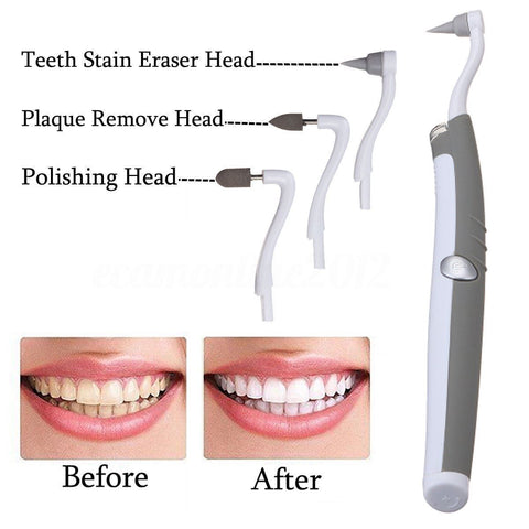 Sonic Tooth Stain Eraser With Plaque Remover - Balma Home