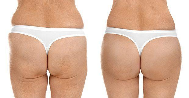 Advanced Hip Lift-up Cream - Balma Home