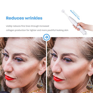 Portable Handheld High Frequency Skin Therapy Wand Machine w/Neon - Acne Treatment - Skin Tightening - Wrinkle Reducing - Dark Circles - Puffy Eyes - Hair Follicle Stimulator