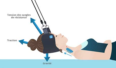 Comment agit un hamac cervical ?