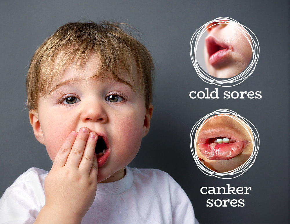 toddler with mouth pain and examples of sores