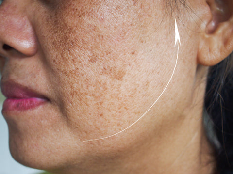 image of hyperpigmentation