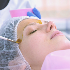 Image of a woman getting a chemical peel