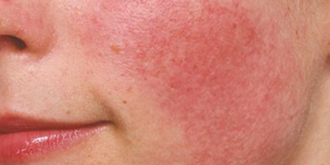 image of inflamed skin
