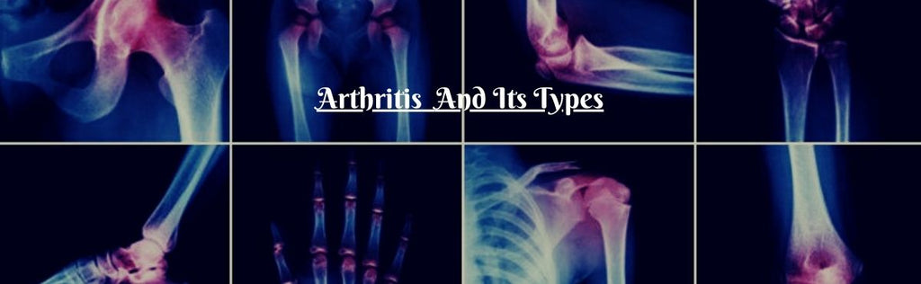 Arthritis: Types, Causes, Symptoms, Medications, And Treatment