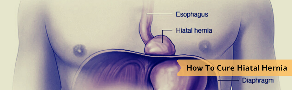 How To Cure Hiatal Hernia Naturally