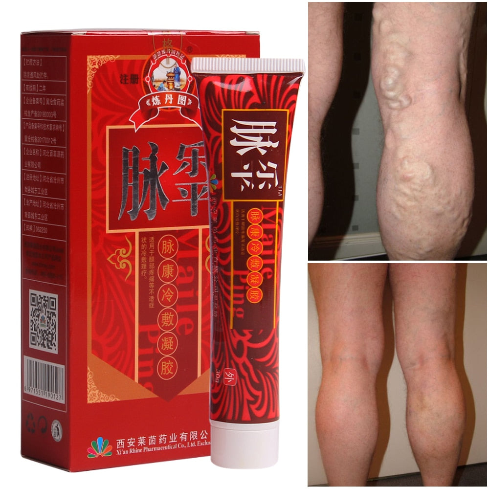 Varicose Veins Treatment Cream Ointment Vasculitis Angiitis Phlebitis Spider Veins Pain Remedy Herbal Body Cream Drop Shipping