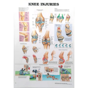 Knee Injuries A2 Poster