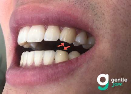Wear on the canine, or cuspid, teeth from bruxism.
