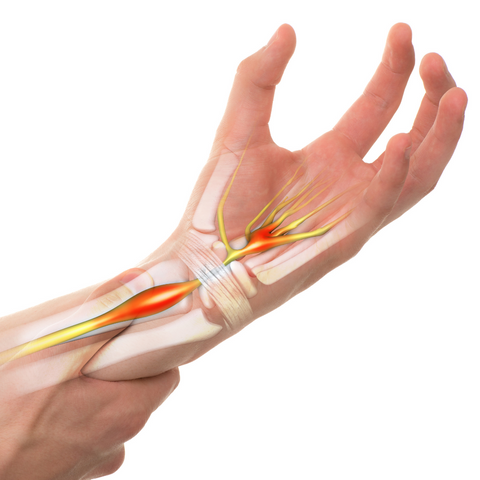 illustration of carpal tunnel syndrom