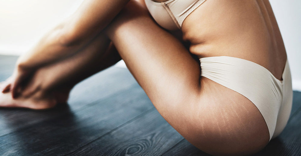 5 Myths about Stretch Marks to Stop Believing