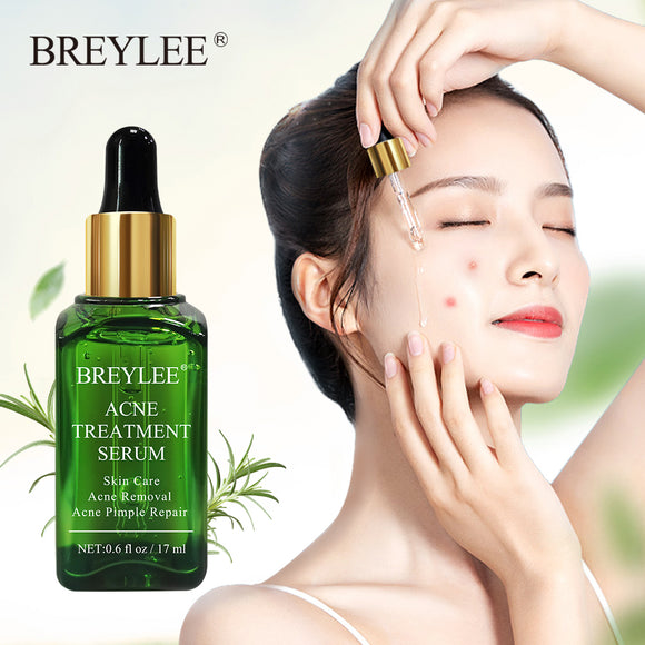 BREYLEE Acne Treatment Face Serum Mask Anti Acne Pimple Scar Remover Moisturizing Whitening Skin Care Facial Essence Cream 17ml