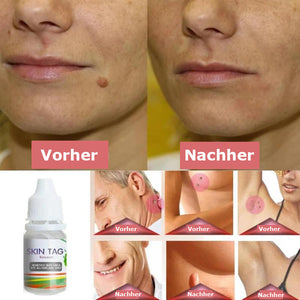 Advanced Skin Tag Remover