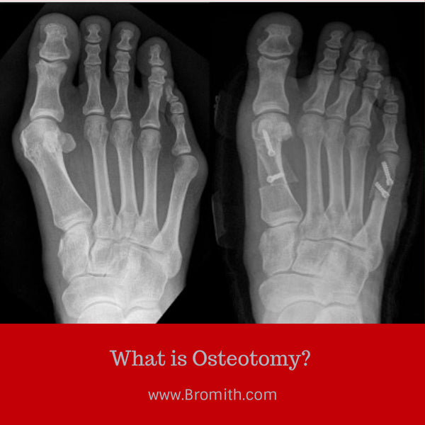 What is Osteotomy?