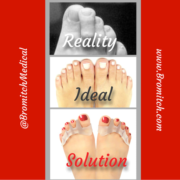 Toe Overlapping Reality, Ideal and Solution!