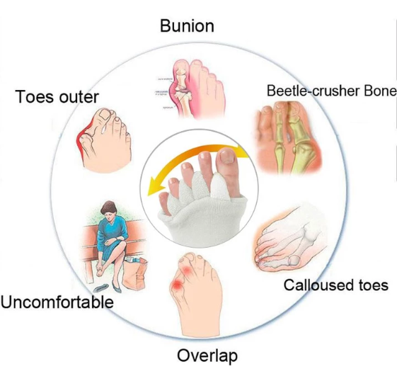 Bunion Relief Toe Socks