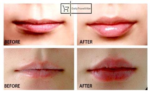 Miracle Lip Plumper