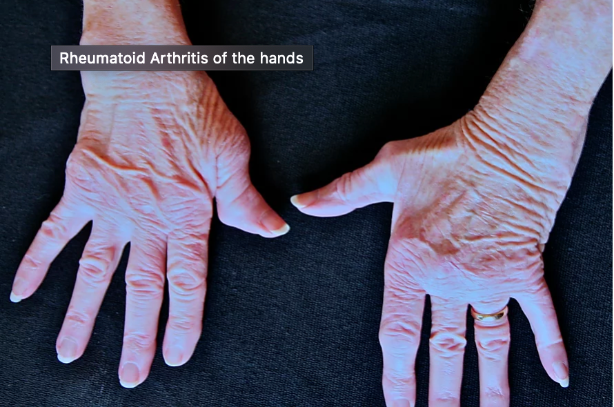 Designing for those with diseases affecting the hand[s]