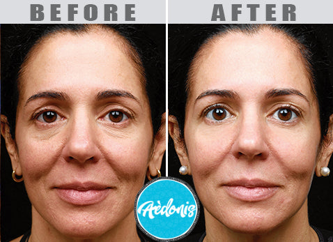 SEE THE AMAZING RESULTS BELOW!