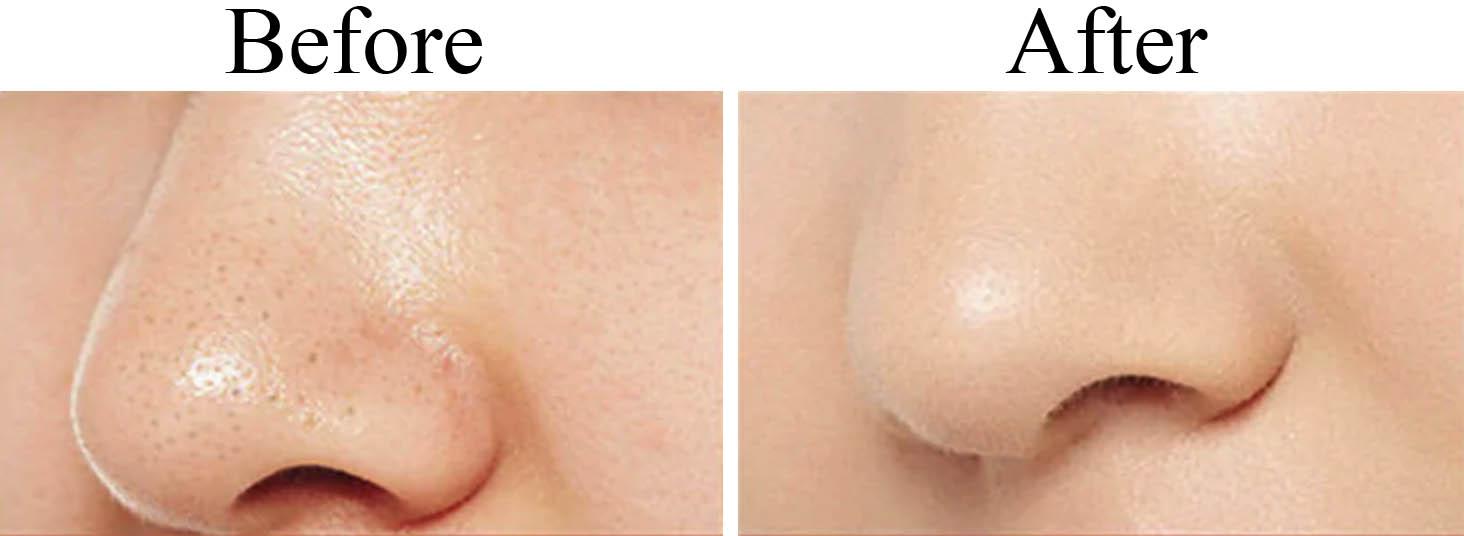 SkinCleanPro before after