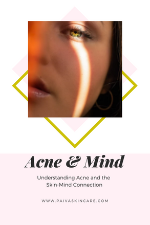 Understanding Acne and the Skin-Mind Connection