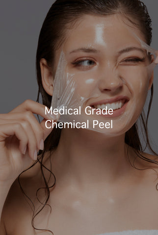 Medical Grade Chemical Peel