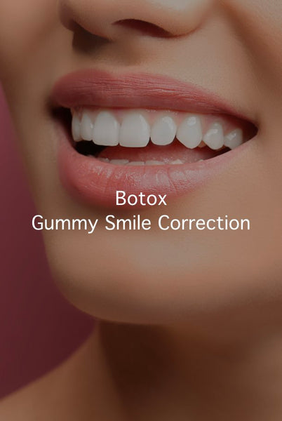 Botox  Gummy Smile Correction