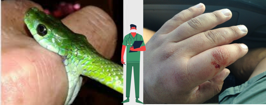 green mamba bite injury