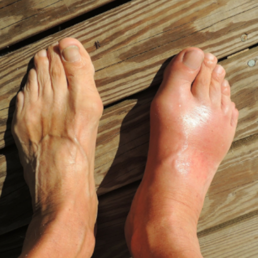 Do you suffer from Gout?