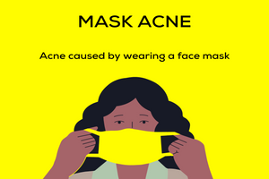 "Coping with ""maskne"" or mask wearing & skincare"