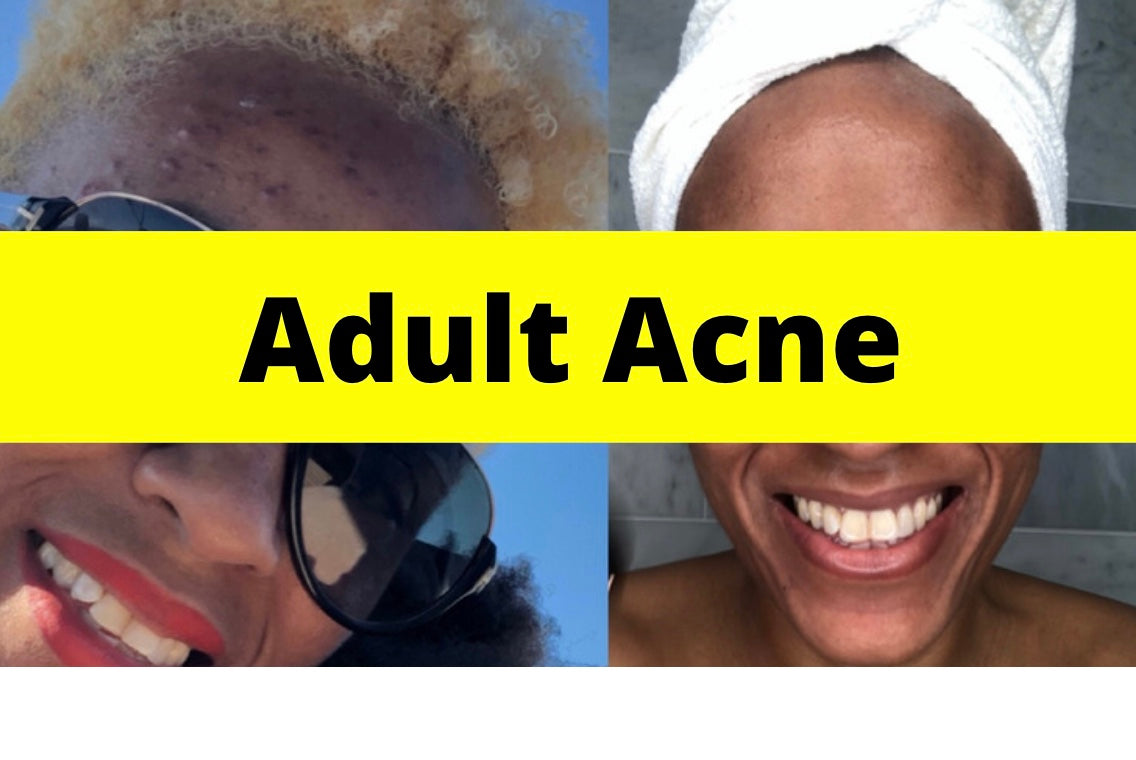Using Like It On Top for Adult Acne