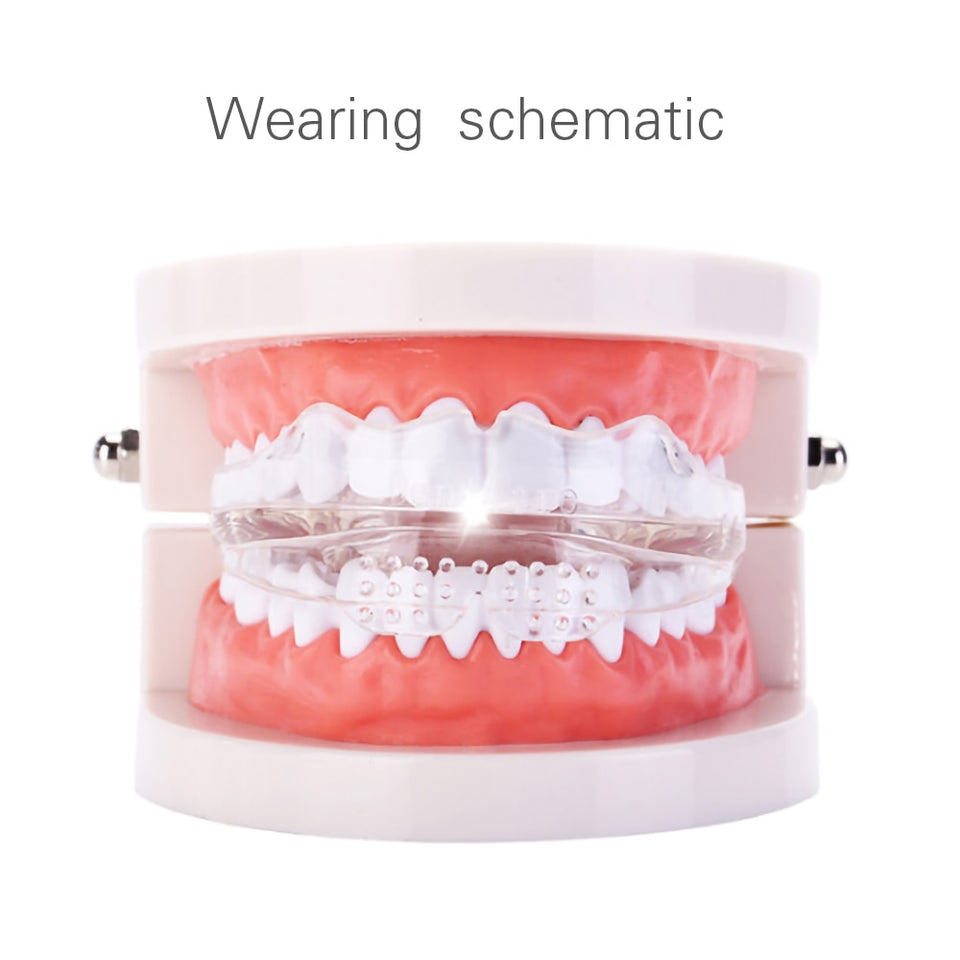LOOSHIE TEETH STRAIGHTENER KIT